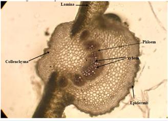 Microscopic Characters: T.S. of Adhatoda vasica leaf