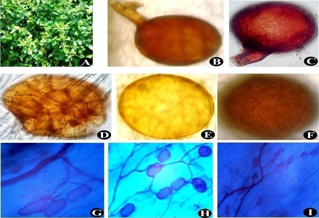 Gymnema sylvestre (A); Glomus mosseae (B); Glomus constrictum (C); Sporocarp of Glomus sp. (D); Juvenile spore of Gigaspora sp. (E); Scutellospora sp. (F); Vesicles and Intraradical hyphae (G) to (I)