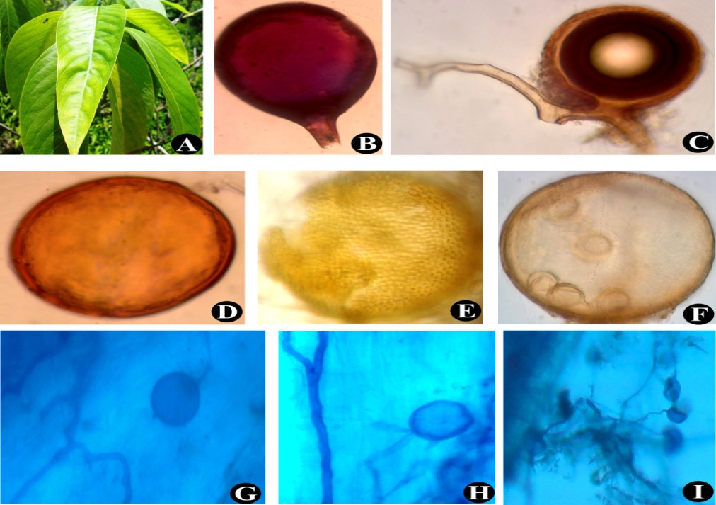 Justicia adhatoda (A); Glomus constrictum (B); Glomus mosseae with hyphal branching(C); Glomus sp. (D); Acaulospora sp. (E); An AMF spore sporocarp. (F); Intraradical hyphae and vesicles (G) to (I)