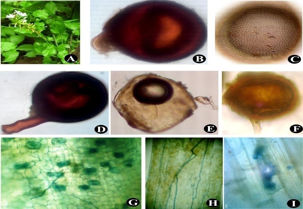 Plumbago zeylanica (A); Glomus sp.(B); Acaulospora spinosa(C); Glomus constrictum (D); Mature spore Gigaspora sp.(E); Glomus sp.(F); Vesicles, intraradical hyphae and arbuscule (G) to (I)