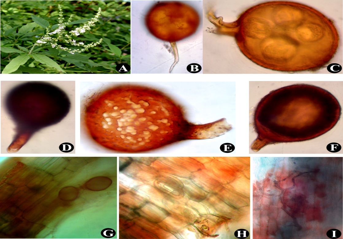 Vitex negundo (A); Glomus mosseae (B); Sporocarp of Glomus sp. (C); Glomus constrictum (D); Glomus sp. (E); Glomus sp. (F); Vesicles, arbuscules and Intraradical hyphae (G) to (I)
