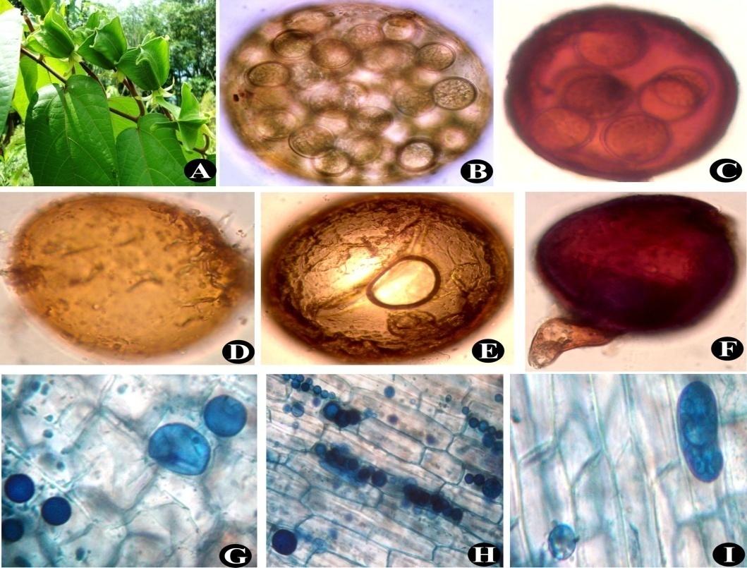 Abroma augusta(A); Sporocarp of Glomus sp. (B); Sporocarp of Scutellospora sp. (C); Glomus sp. (D); Mature Gigaspora sp. (E); Glomus fasciculatum (F); Vesicles and Arbuscules (G) to (I)