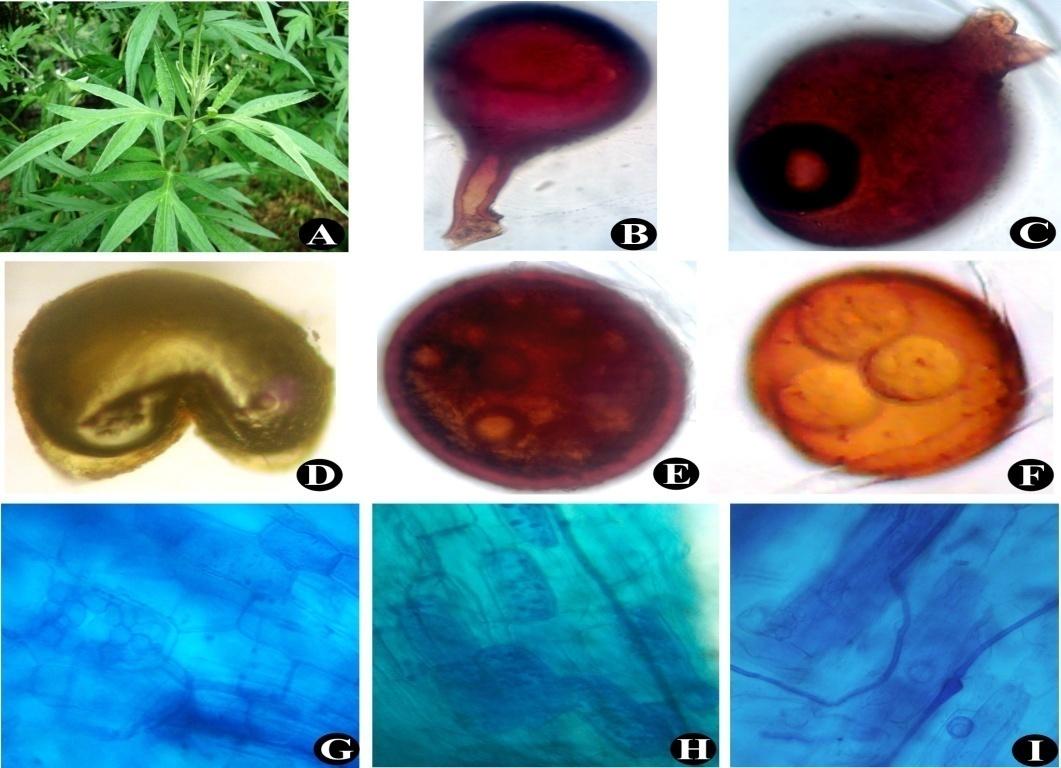 Artemisia vulgaris(A); G. constrictum (B); Glomus sp. (C); Ruptured spore of Gigaspora sp. (D); Sporocarp of Glomus sp. (E); Sporocarp of Glomus sp. (F); Arbuscules and Intraradical hyphae (G) to (I)