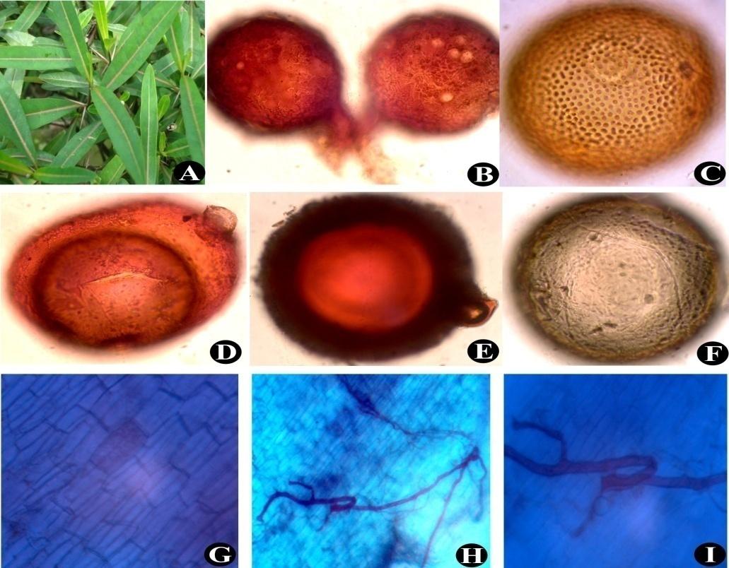 Barleria lupulina (A); Glomus fasciculatum (B); Acaulospora sp.(C); Glomus sp. (D); Scutellospora sp. (E); Mature Gigaspora sp. (F); Arbuscules and Intraradical hyphae (G) to (I)