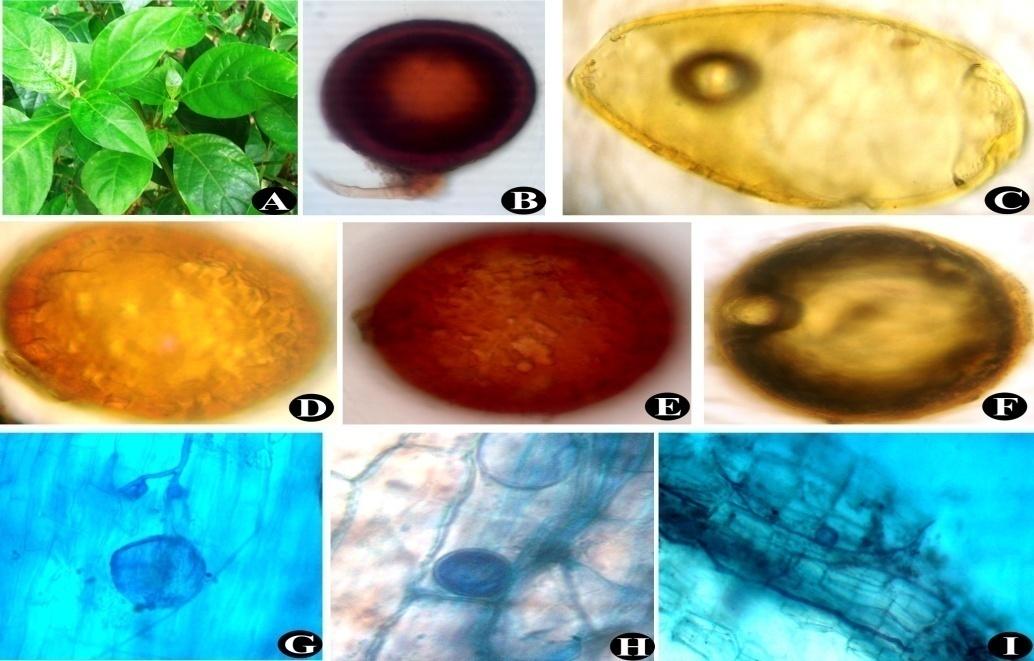 Barleria strigosa (A); Glomus mosseae (B); Glomus sp. (C); Glomus sp. (D); Scutellospora sp. (E); Mature Gigaspora sp. (F); Vesicles and Intraradical hyphae (G) to (I)