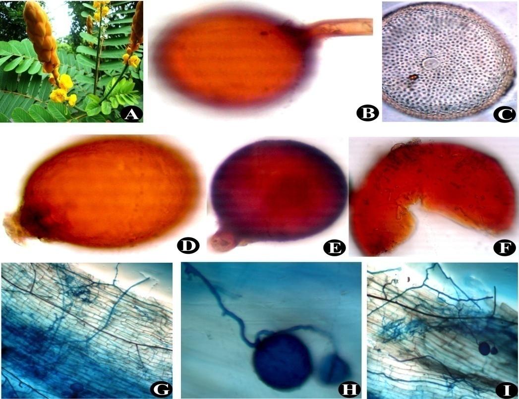 Cassia alata (A); Glomus mosseae (B); Acaulospora sp.(C); Glomus sp. (D); Glomus constrictum (E); Ruptured spore of Scutellospora (F); Intraradical hyphae and vesicles (G) to (I)