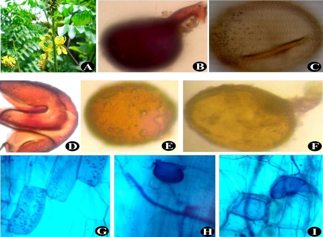 Caesalpinia bonduc (A); Glomus mosseae (B); Acaulospora sp. (C); Ruptured spore of Scutellospora sp. (D); Glomus sp. (E); Glomus sp. (F); Juvenile arbuscules, Vesicles and Intraradical hyphae (G) to (I)