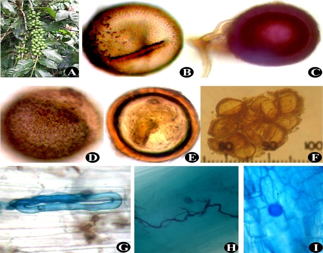 Coffea arabica (A); Acaulospora spinosa (B); Glomus fasciculatum (C); Acaulospora sp. (D); Glomus sp. (E); Sporocarp of Glomus sp. (F); Mature arbuscules, Intraradical hyphae and Vesicles (G) to (I)