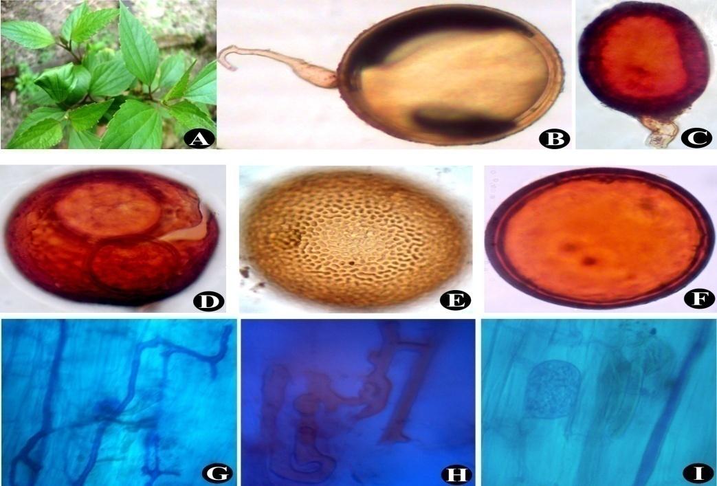 Eupatorium adenophorum (A); Gigaspora margarita (B); Glomus sp.(C); Ruptured spore of Scutellospora sp. (D); Acaulospora bireticulata (E); Glomus sp. (F); Intraradical hyphae and juvenile arbuscules (G) to (I)