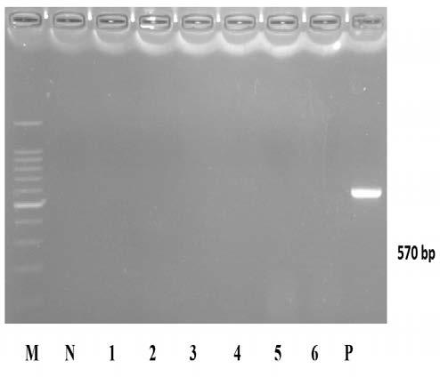 Agarose gel of the PCR product of Tiger grouper Epinephelus fuscoguttatus prior to experimental infection with Iridovirus. LANE M: DNA molecular weight marker (); LANE 1: Sample 1; LANE 2: Sample 2; LANE 3: Sample 3; LANE 4: Sample 4; LANE 5: Sample 5; LANE P: Positive control; LANE N: Negative Control.