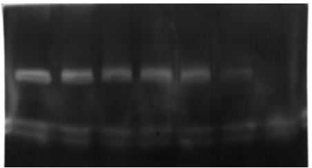 Protease Inhibition by methanolic Extract of Triphala- Case 2: Gelatin zymography shows the inhibition of metalloproteases from P.aeruginosa ATCC 27853 cultures at different concentrations of Triphala extracts. Lane1 – Control, Lane (2-7) – Enzyme inhibition by Triphala extract (from Left to Right).