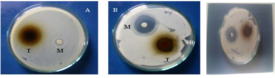 Disc Diffusion Assay for Methanol Extract of Triphala against (A) clinical isolates MRSA, (B) S.aureus and (C) Pseudomonas aeruginosa.