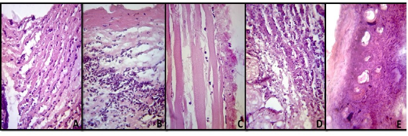 Excised wounds From mice treated with silver sulfadiazine (A),crude (B) and ethanolic (C) Bixa orellana extracts,Bixa orellana ointment (D),and distilled water (E), (H & E,400x)