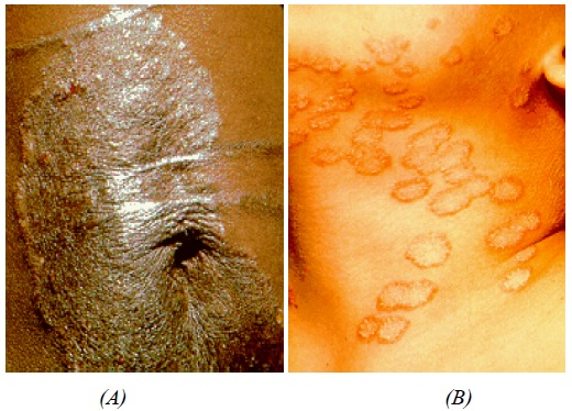 (A)- Tinea corporis caused by T. rubrum in Australian Aborigines living near Darwin in the Northern Territory [9]. (B)- Tinea corporis caused by M. canis following contact with infectious kittens [9]