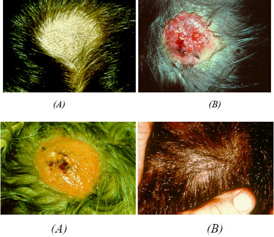 (A)- Tinea capitis showing extensive hair loss caused by M. Canis [9]. (B)-