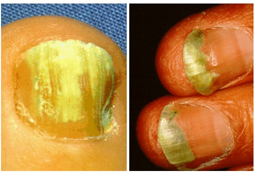 Tinea of the nails caused by T. Rubrum [9]