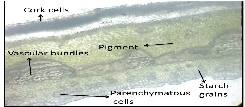 T.S of bark of Ficus retusa showed vascular bundles, parenchymatous cells, starch grains and pigment.