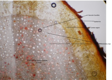 T.S of root of Ficus retusa. Linn shows vascular bundles, epidermis, medullary rays and cortex region.