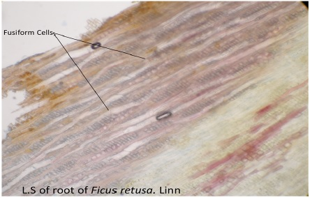 L.S of root of Fcus retusa showing fusiform cells