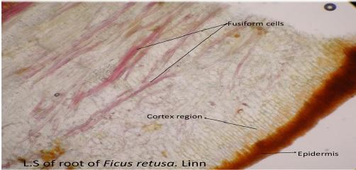L.S of root of Ficus retusa showing epidermis, cortex region and fusiform cells.
